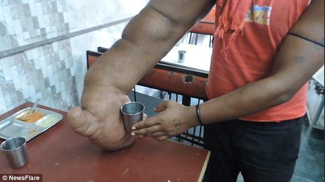 Индиец Баблу и его гигантская рука (5)