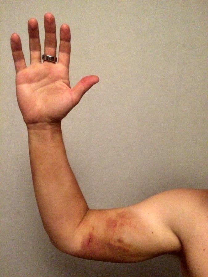 Что случится если вас укусит гадюка (16)