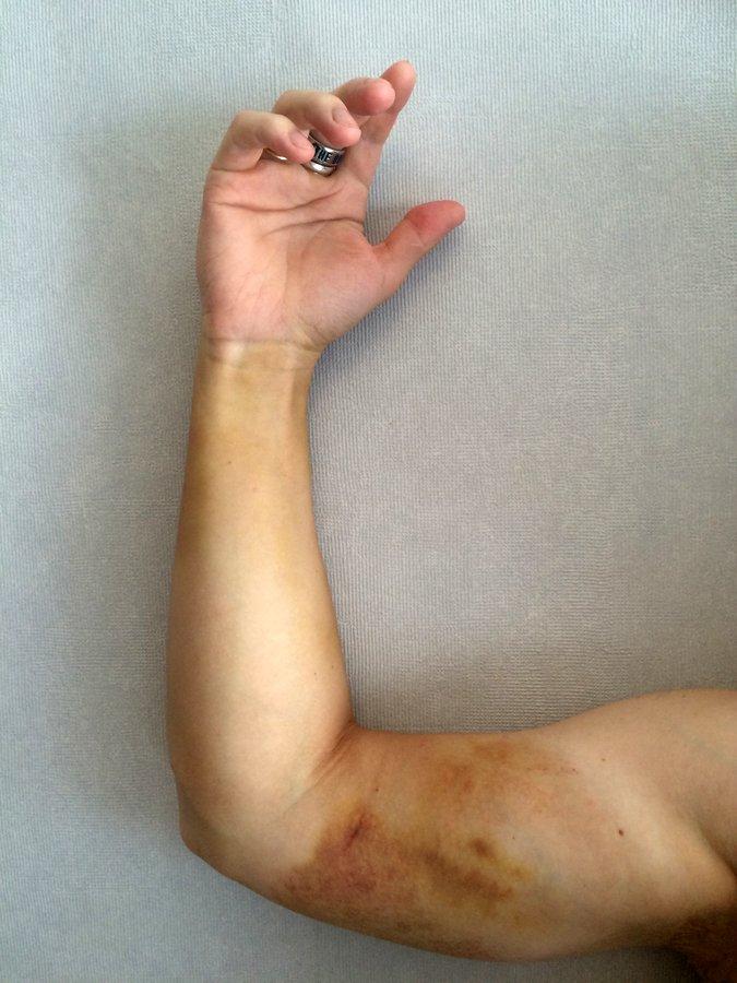 Что случится если вас укусит гадюка (17)