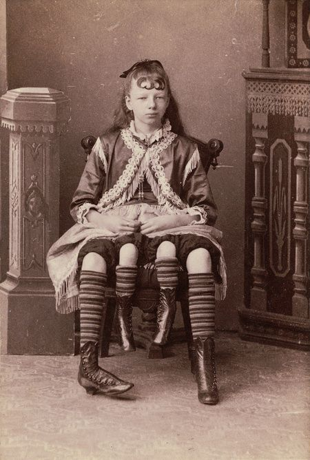 Удивительная мутация. Женщина с четырьмя ногами (1)