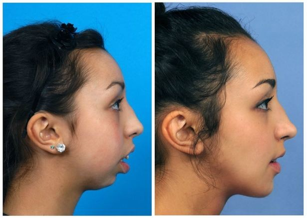 Поразительное преображение девушки после пластической хирургии (3)