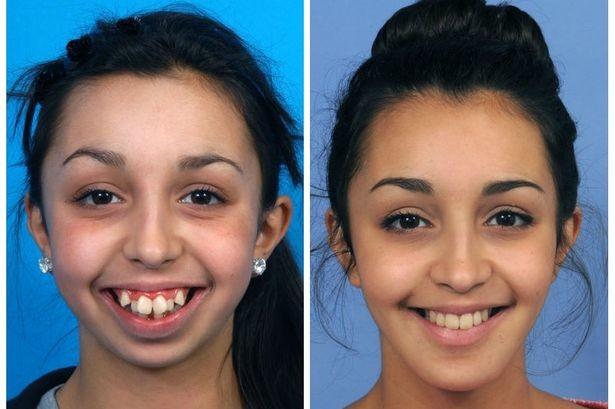 Поразительное преображение девушки после пластической хирургии (4)