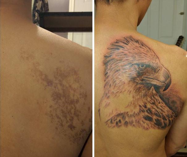 Как эффектно скрыть родимые пятна с помощью татуировок (4)