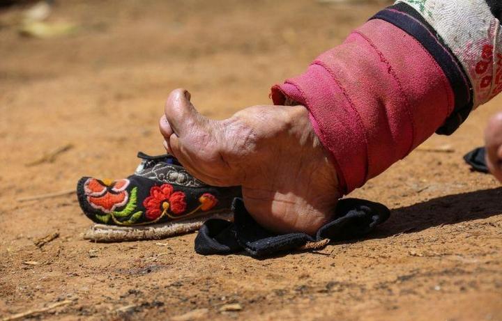 Последние китаянки пережившие бинтование ног (9)
