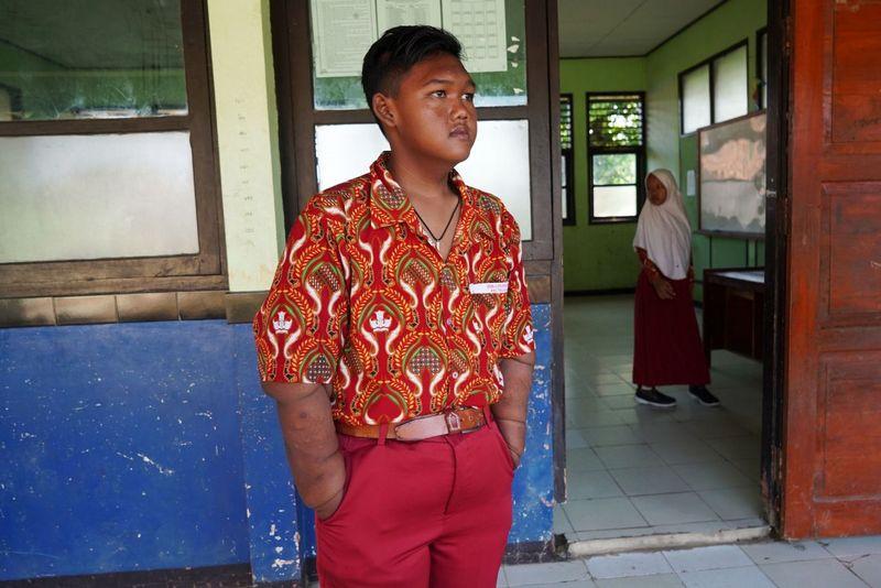 Самый полный ребенок в мире сбросил 100 кг (10)
