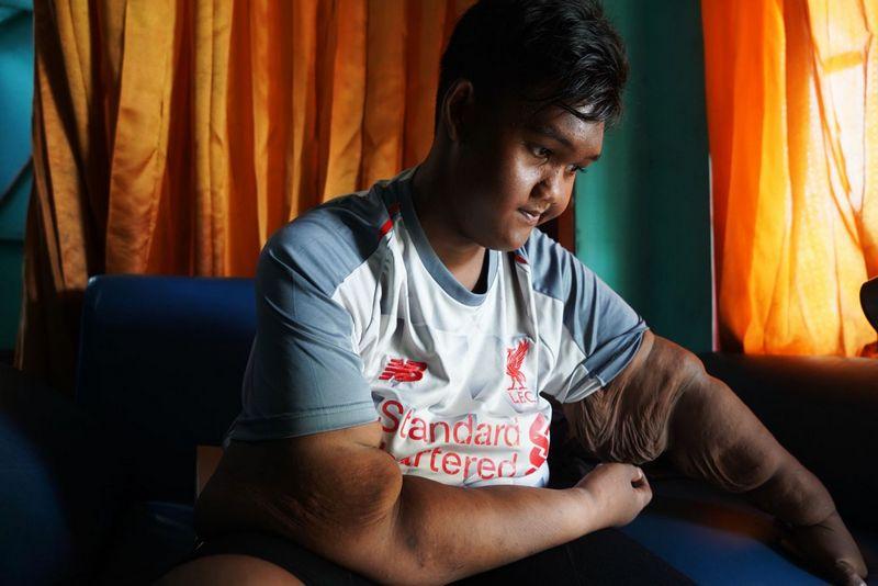 Самый полный ребенок в мире сбросил 100 кг (12)