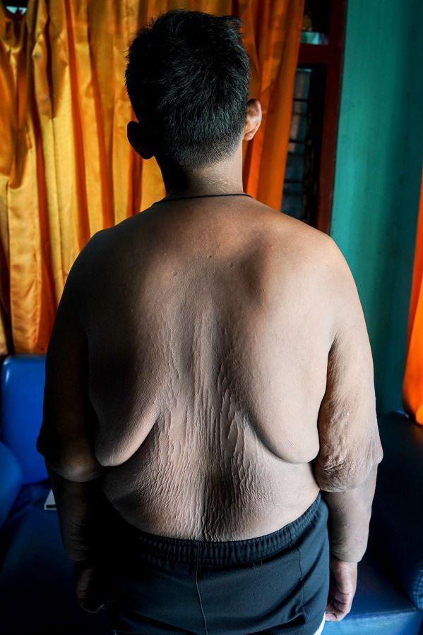 Самый полный ребенок в мире сбросил 100 кг (13)