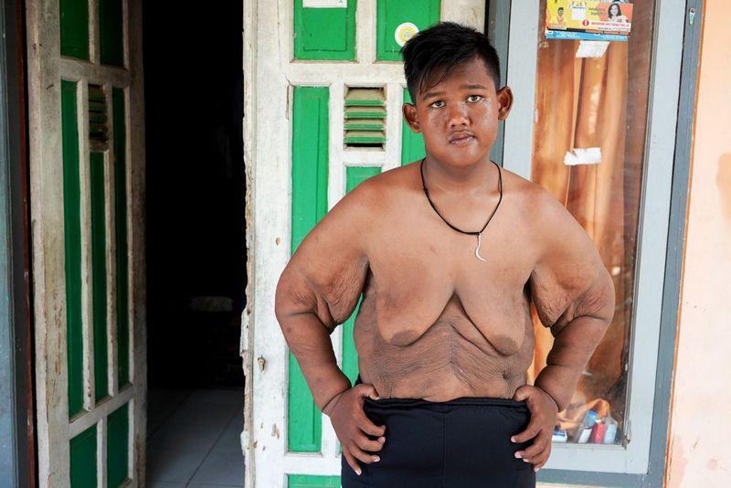 Самый полный ребенок в мире сбросил 100 кг (14)