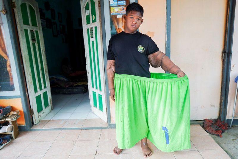 Самый полный ребенок в мире сбросил 100 кг (15)