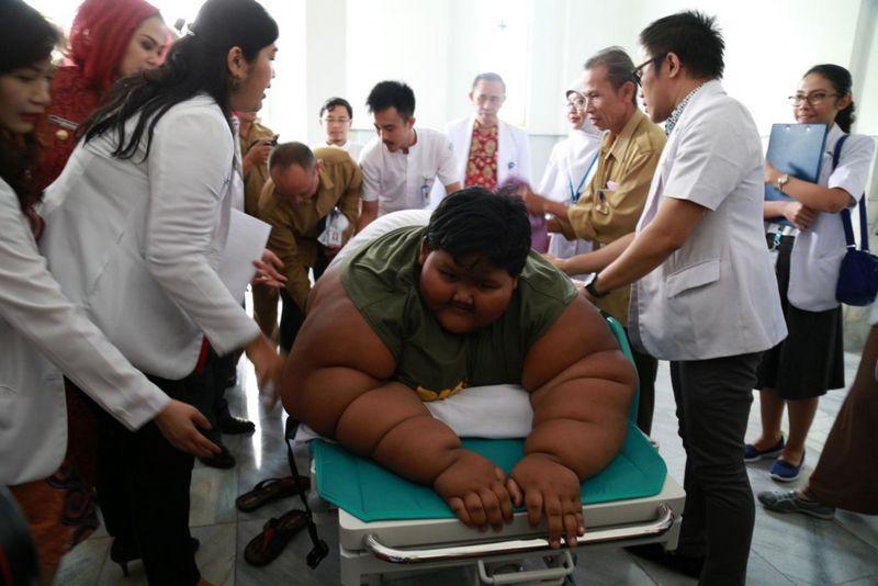 Самый полный ребенок в мире сбросил 100 кг (2)