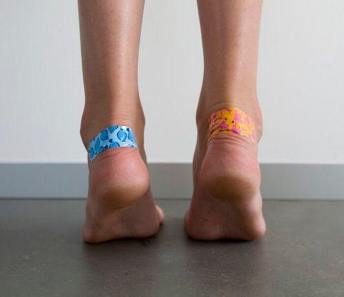 Как избежать появления мозолей на ногах? (3)