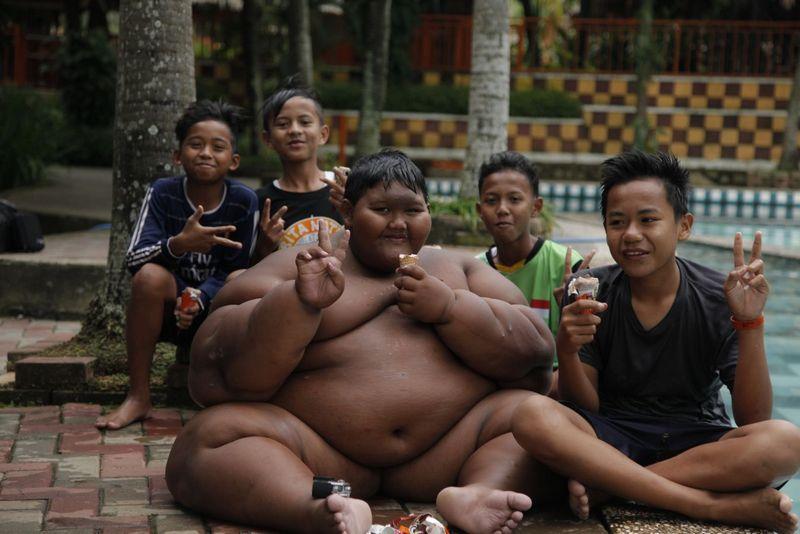 Самый полный ребенок в мире сбросил 100 кг (4)