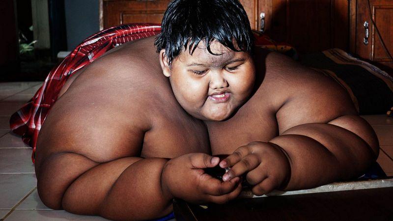 Самый полный ребенок в мире сбросил 100 кг (6)