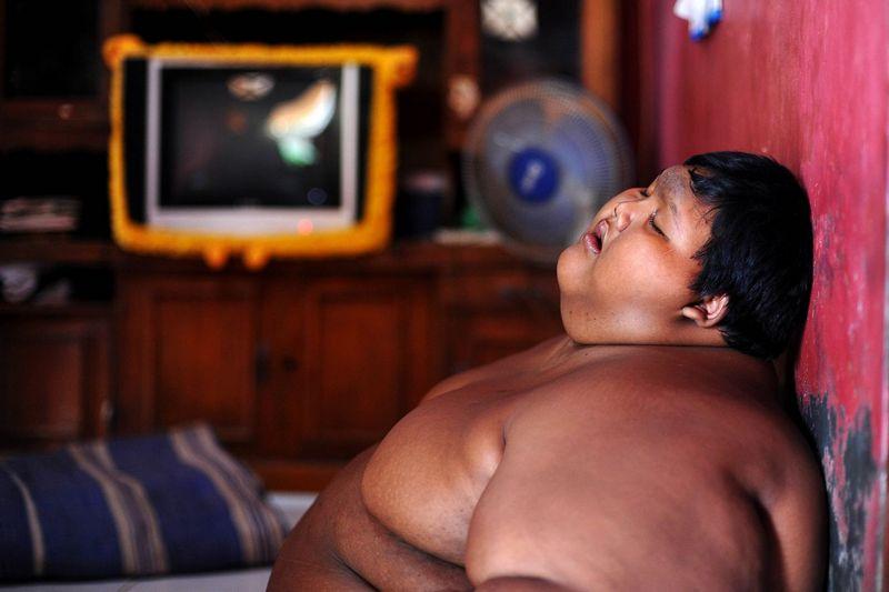 Самый полный ребенок в мире сбросил 100 кг (8)