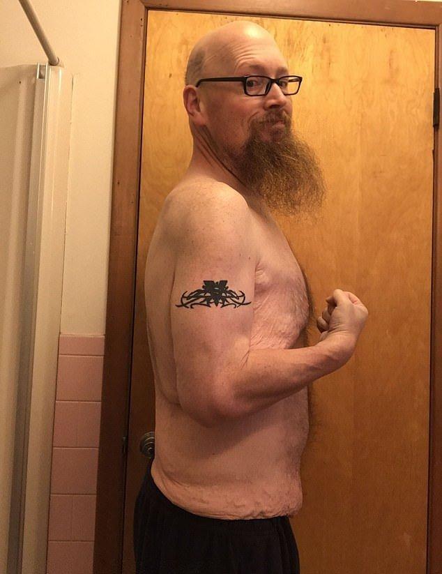 Мужчина перестал есть по 20000 калорий в день. И вот как он теперь выглядит (12)