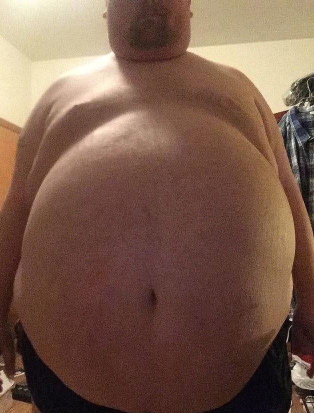 Мужчина перестал есть по 20000 калорий в день. И вот как он теперь выглядит (4)