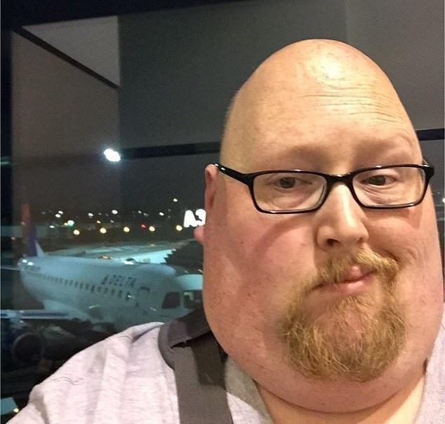 Мужчина перестал есть по 20000 калорий в день. И вот как он теперь выглядит (6)