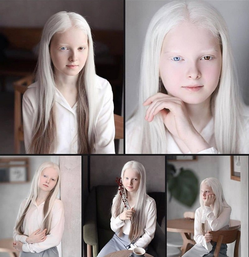 11-летняя девочка из Чечни с редким генетическим заболеванием: альбинизм и полная гетерохромия.